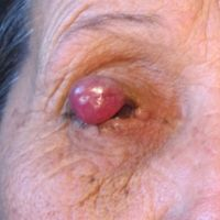 Tumor Palpebral Extremo